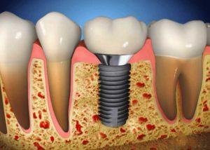 установка зубных имплантов в Тюмени