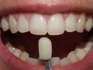 протезирование зубов в Тюмени цены