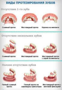 виды и цена на протезирование зубов Тюмень