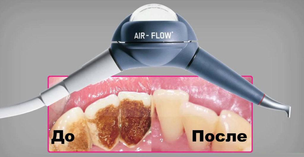 air-flow-chistka-zubov