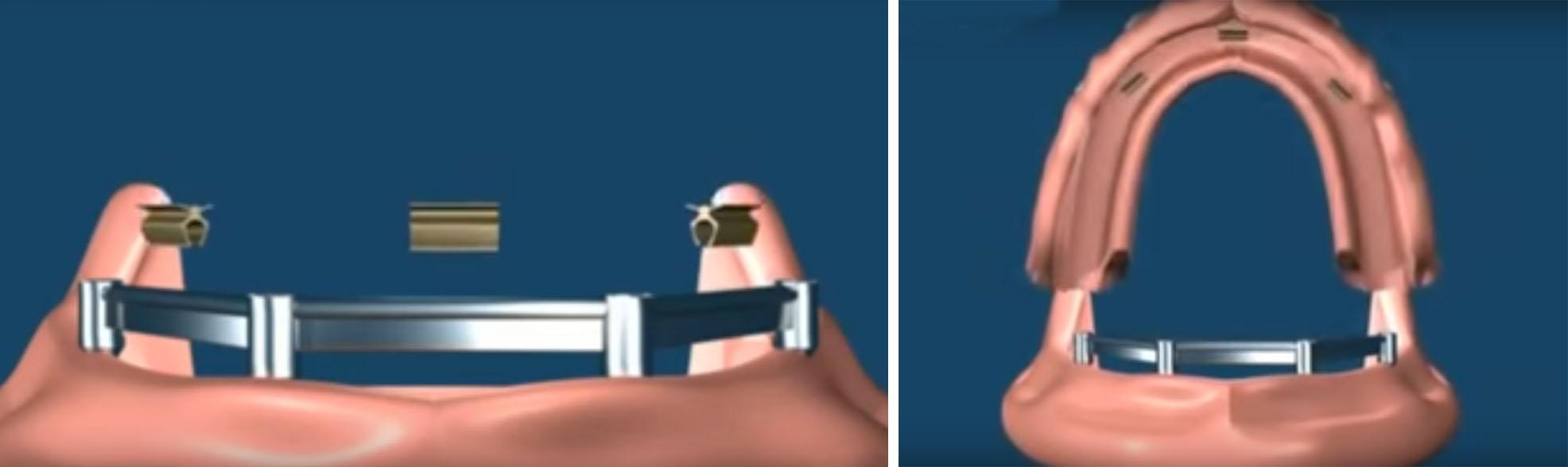 Балочное крепление съемных имплантов