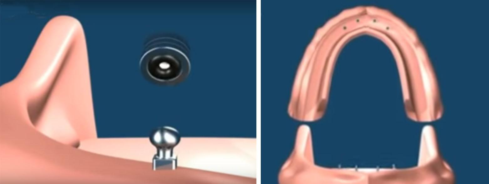 Шаровидное крепление съемных имплантов