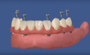 Несъемное протезирование на имплантах с винтовой фиксацией челюсти