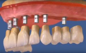 Несъемное протезирование на имплантах