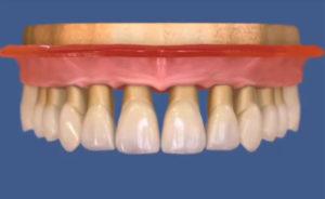 Несъемное протезирование на имплантах с винтовой фиксацией