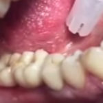 vintovaia-fiksatciia-implanta-vo-rtu