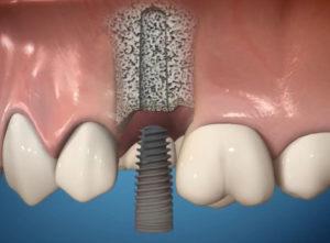 implantat-mis-s1-ustanovka