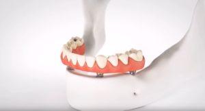имплантация зубов в Тюмени по доступной цене