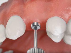 цены на имплантацию зубов в Тюмени