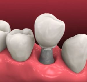 имплантация зубов Тюмень цены